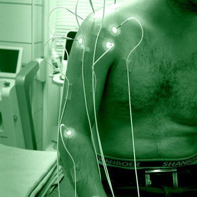 med_lasertherapie_arm